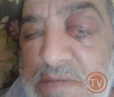 Oog operatie Abdelkader Marokko